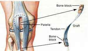 For an ACL rebuild, the Patellar Tendon beats out the Hamstring  
