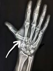 thumb 2