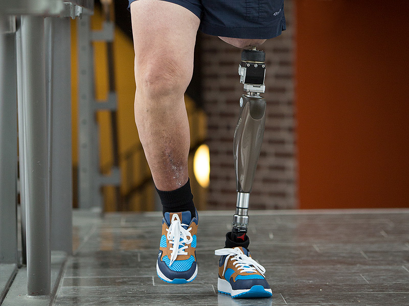 The Future Of Prosthetics Is Osseointegrated Implants