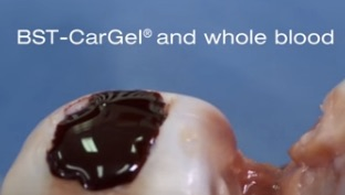Smith & Nephew acquires cartilage repair product BST-CarGel
