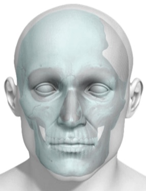 BioArchitects wins FDA clearance for 3D printing of skull plates