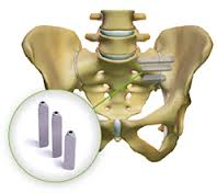 Studies show that SI-BONE's iFuse implant saves time and money