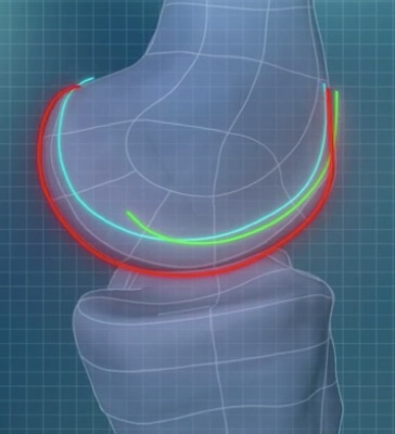 ConforMIS sues Smith & Nephew over patient-specific knee implants