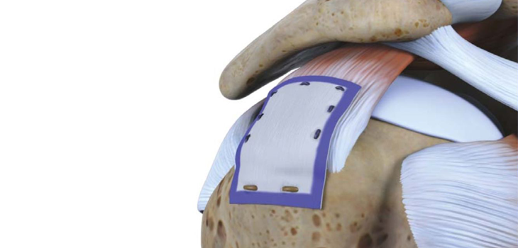 Rotation Medical's Bio-inductive rotator cuff repair looks promising early