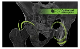 The 1st-ever functional, patient-specific hip replacement procedures performed in the USA