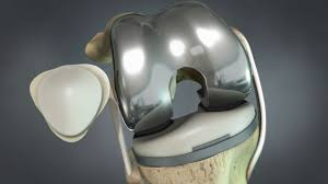 Medtronic formally jumps into the total joint segment with a total knee replacement and program