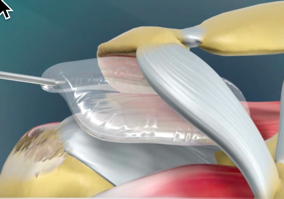 Study: The InSpace biodegradable balloon works well for massive rotator cuff tears