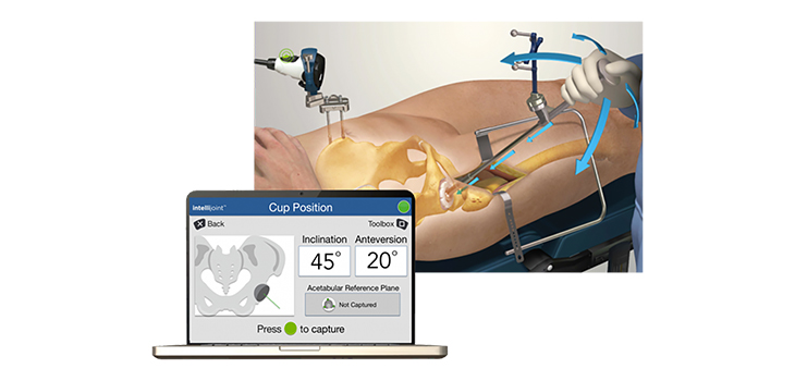 FDA clears Intellijoint's anterior hip low cost navigation system
