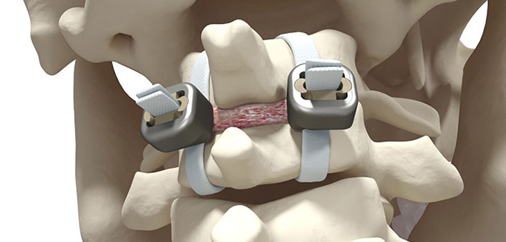 """Strapping"" fixation without screws is cleared in Europe"