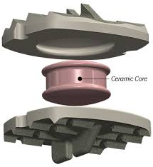The MRI-friendly cervical disc pulls in $21M