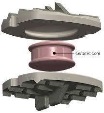 The MRI-friendly cervical disc pulls in $21M