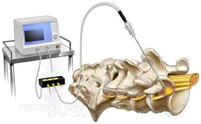 STUDY:  There is no benefit from RF denervation