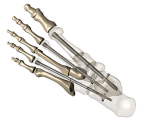 Novel Foot Fixation system cleared by FDA