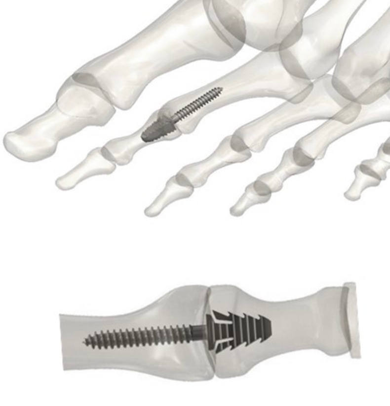 Tyber Medical Receives wins clearance for its TyFix™ All-in-One Extremity Joint Fixation Device