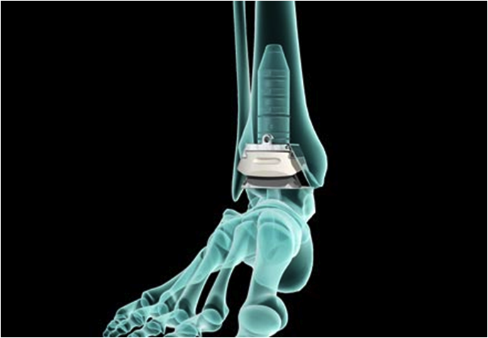 DePuy & Wright lead the US extremities market with foot & ankle procedures
