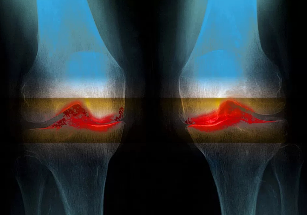 The stem cell treatment hysteria for knee arthritis