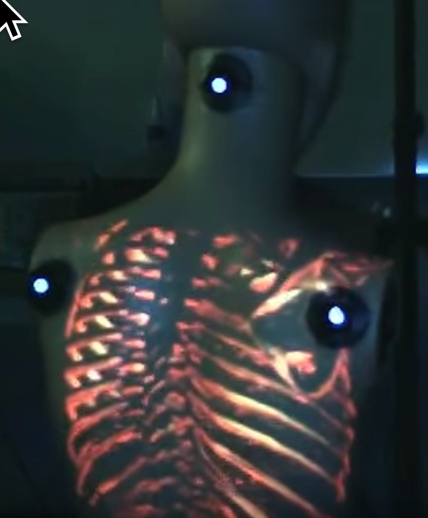 VIDEO: Surgeons can now use Augmented Reality video to look inside the patient
