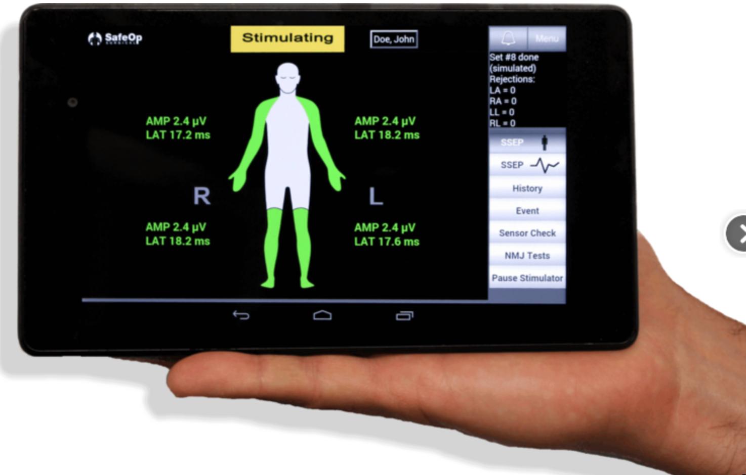 Alphatec Spine acquires neuromonitoring platform for $27M in cash and stock