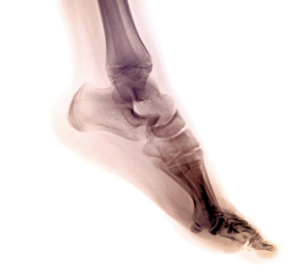 Top 10 Innovations In Podiatry