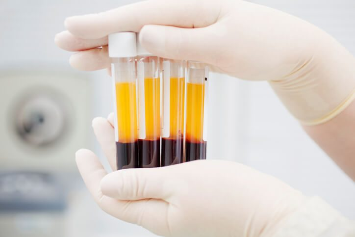 The PRP craze has far outpaced evidence-based outcomes