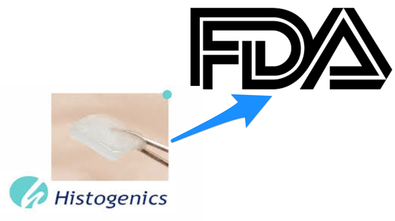Histogenics gambles on an FDA clearance with a missed end point