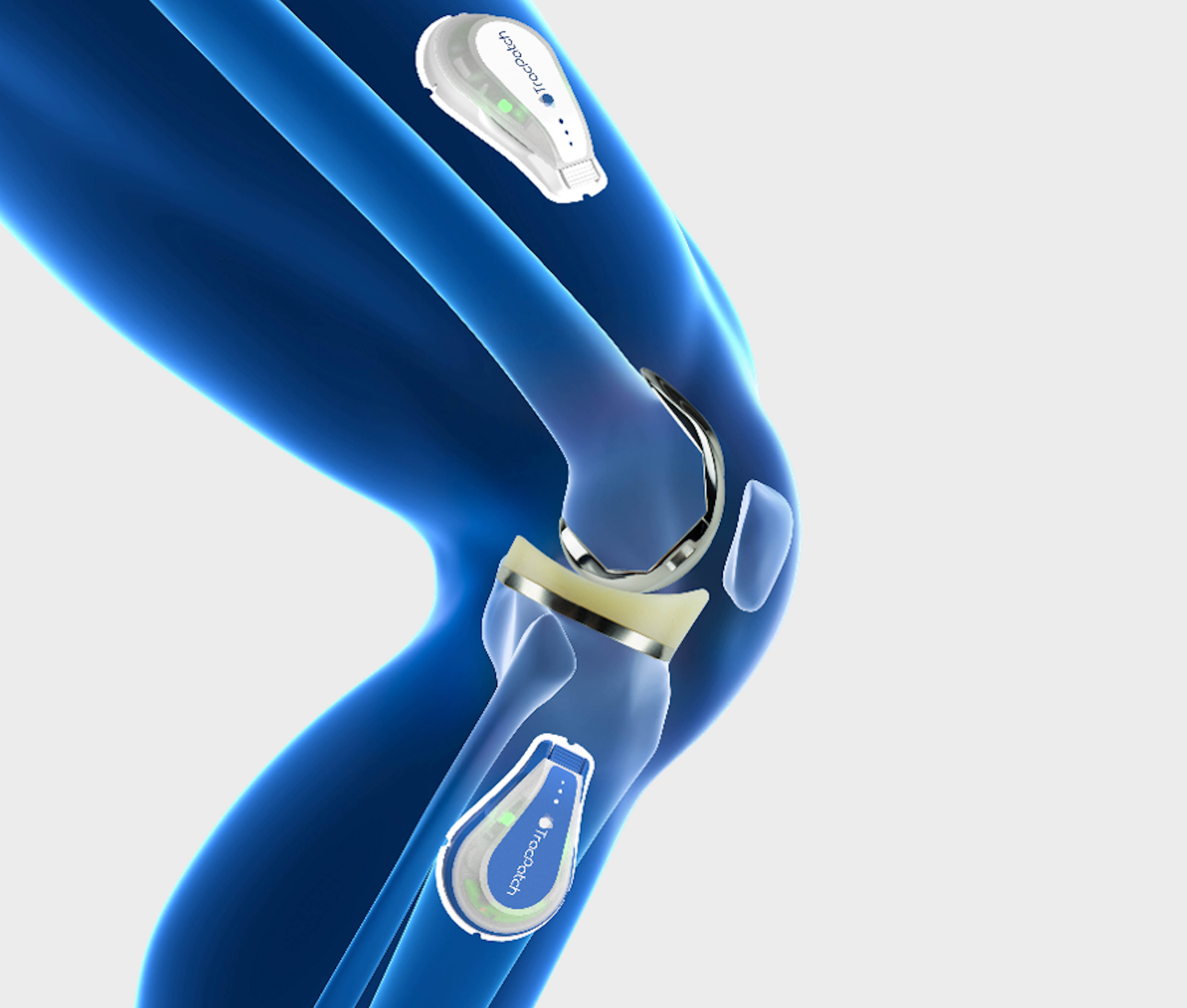 Everything you need to know about the first wearable orthopedic device, TracPatch