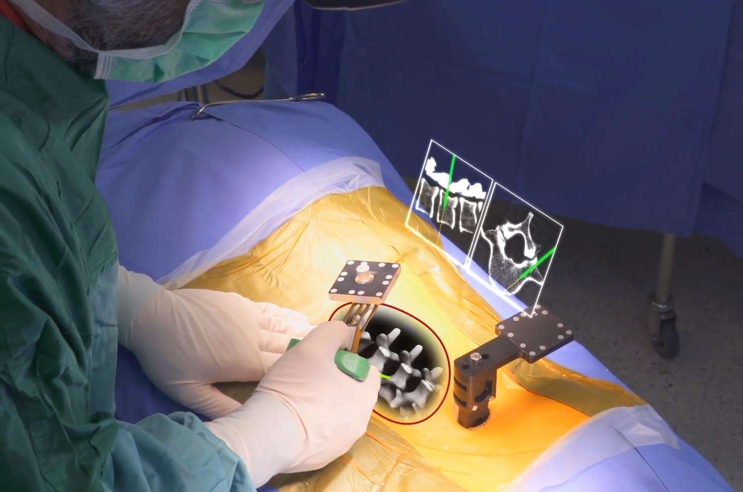 Today, 3 startups using Augmented Reality in surgery
