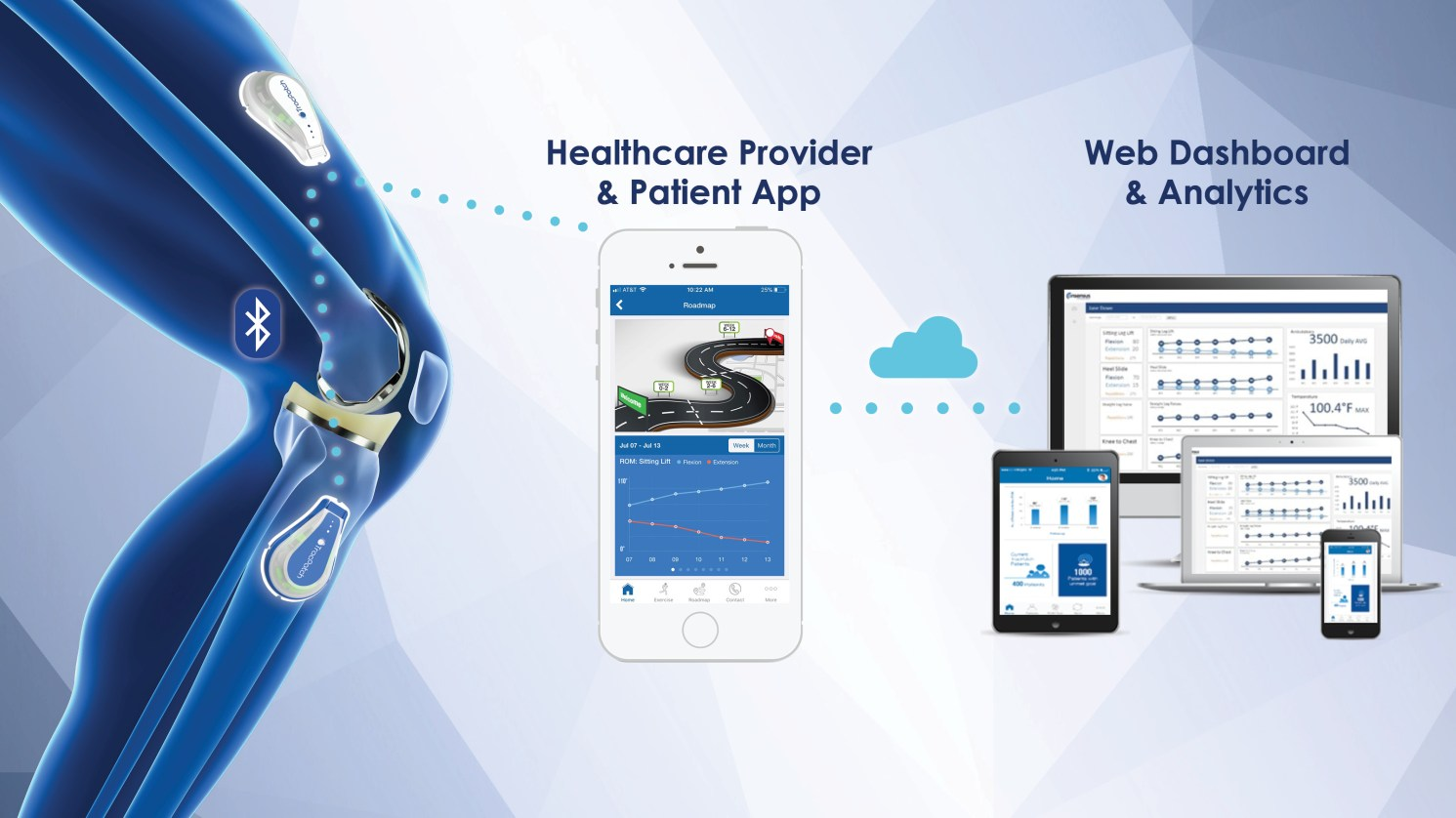 How wearables have come into Orthopedics