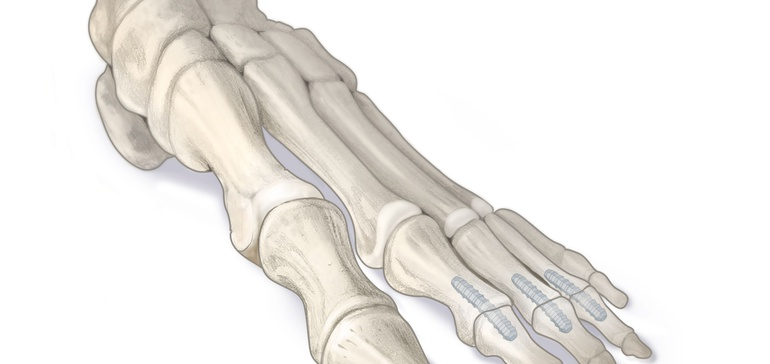 FDA clears absorbable foot and ankle pins