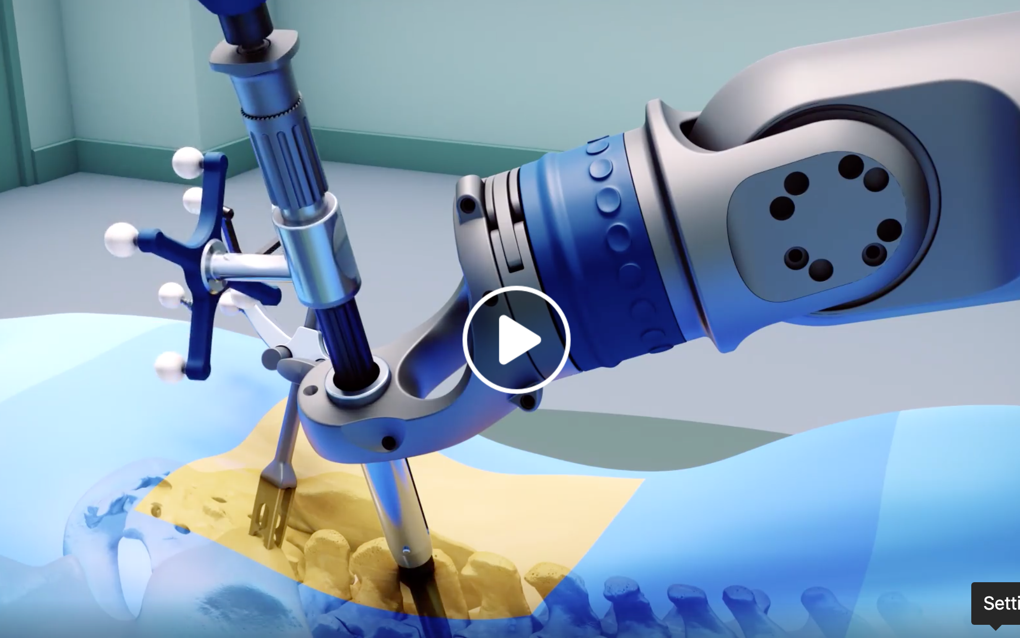 3 spine surgeons share their early robotic surgery experiences