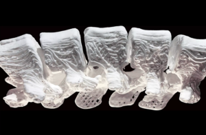 A glimpse into the future of Orthopedics…  Clinical Trial starts with 3D printed materials that turn into bone.