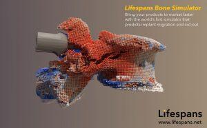 Interesting new tool, the Lifespans Bone Simulator
