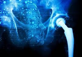 Is AI the next big advancement in Orthopedics?