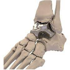 Paragon 28 acquires the assets of Additive Orthopaedics