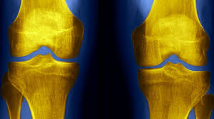 FDA clears AI-driven algorithm diagnosis for knees